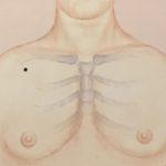 Lunge 1 Akupressurpunkt